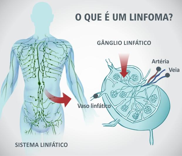 RTEmagicC_linfoma.jpg