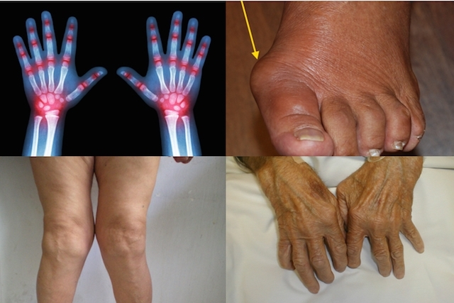 como-identificar-e-tratar-a-artrite-reumatoide-1-1-640-427