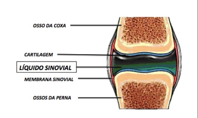 viscosuplementacao-do-joelho