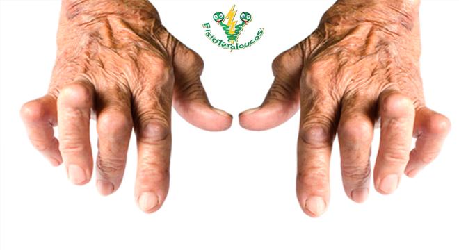 Intervenção Fisioterapêutica é fundamental para manter AVD em pacientes com artrite reumatóide